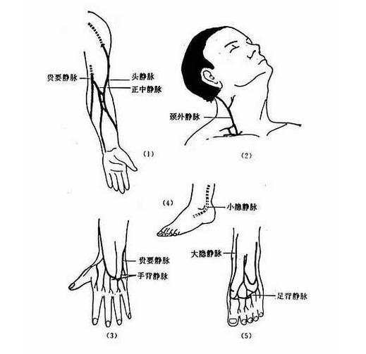 肌肉注射的部位_静脉注射_好搜百科